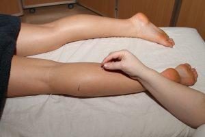 Akupunktur i Horsens